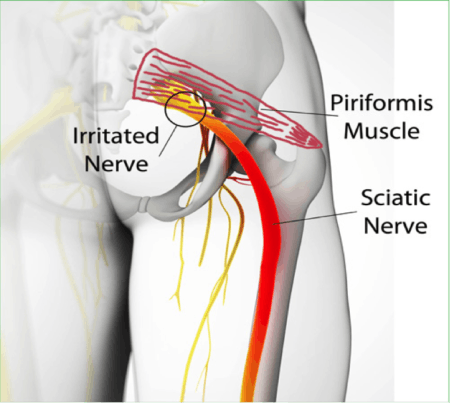 Image result for piriformis muscle